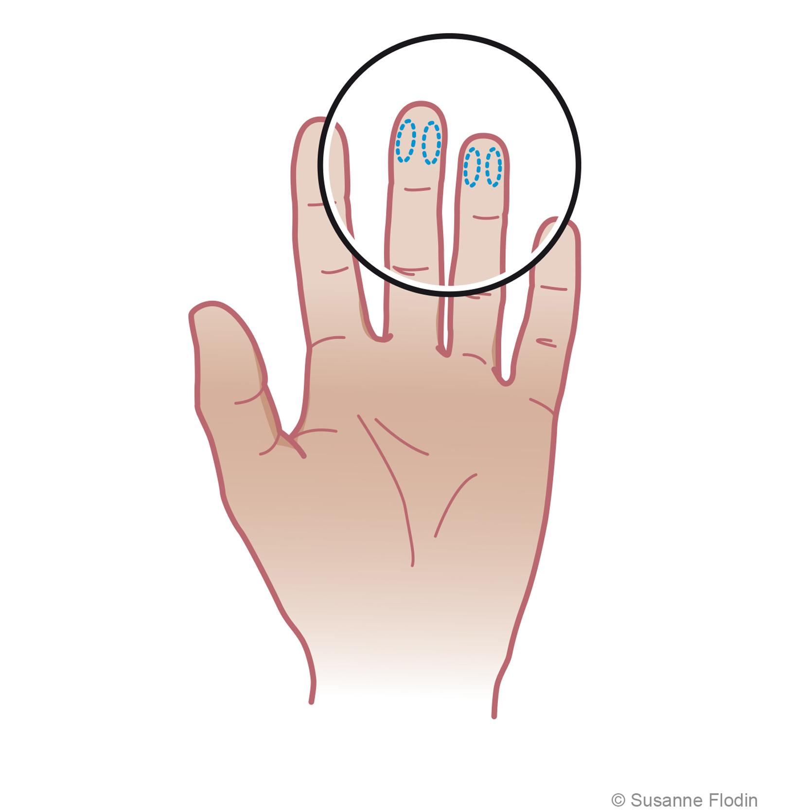 blodprov i fingret
