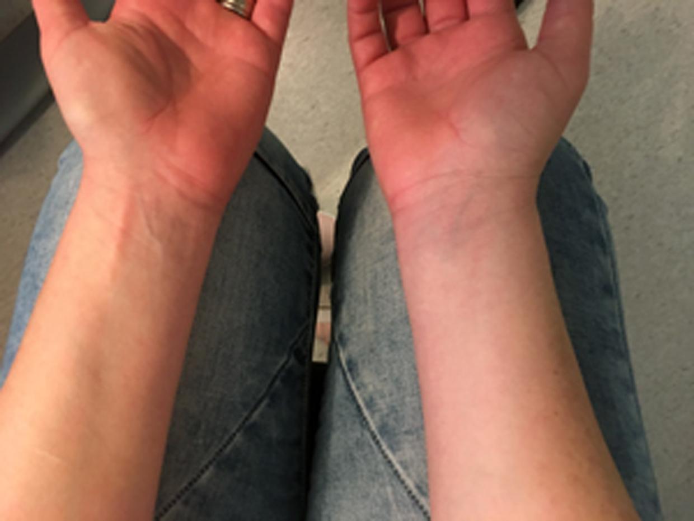infektion i armen