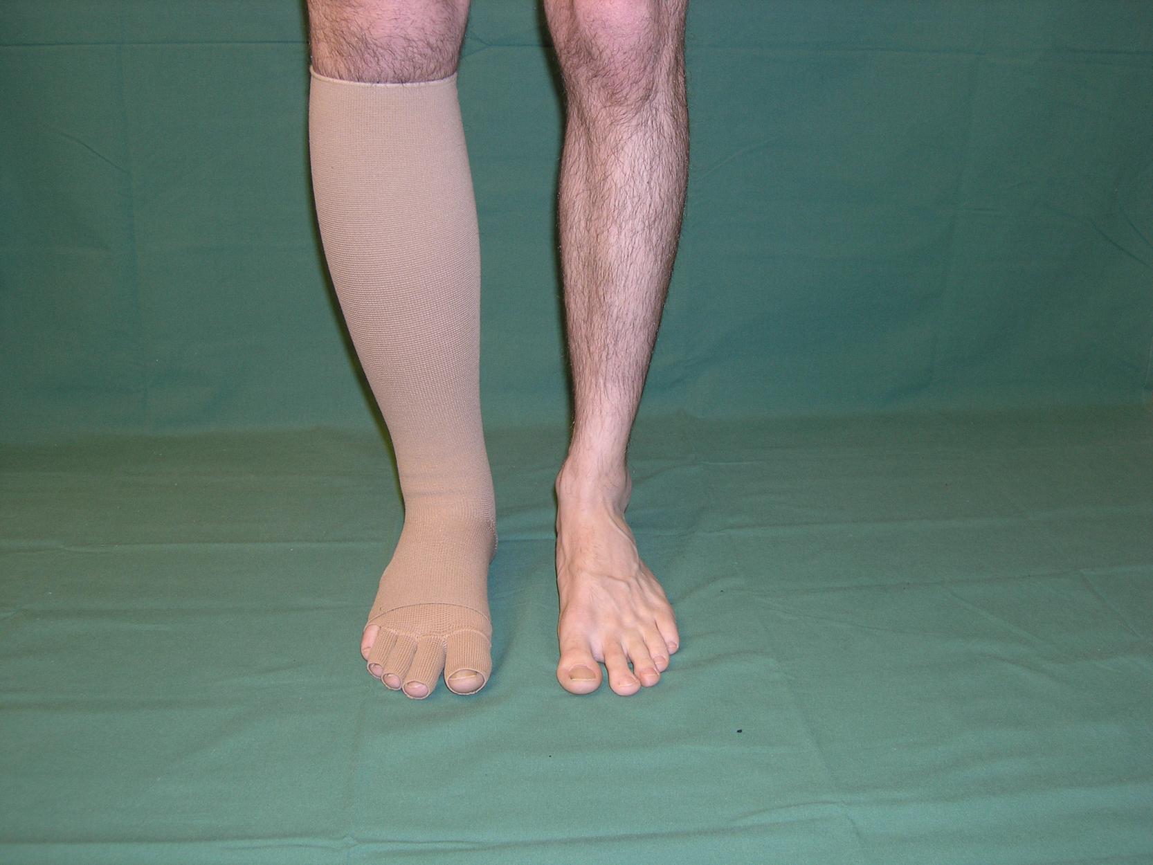 lymfödem ben träning