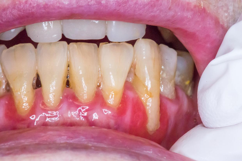 inflammation munnen symptom